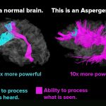 NT-Brain vs AS-Brain